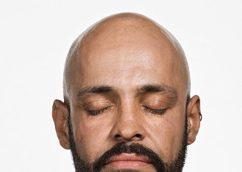 glatze-durch-muetze
